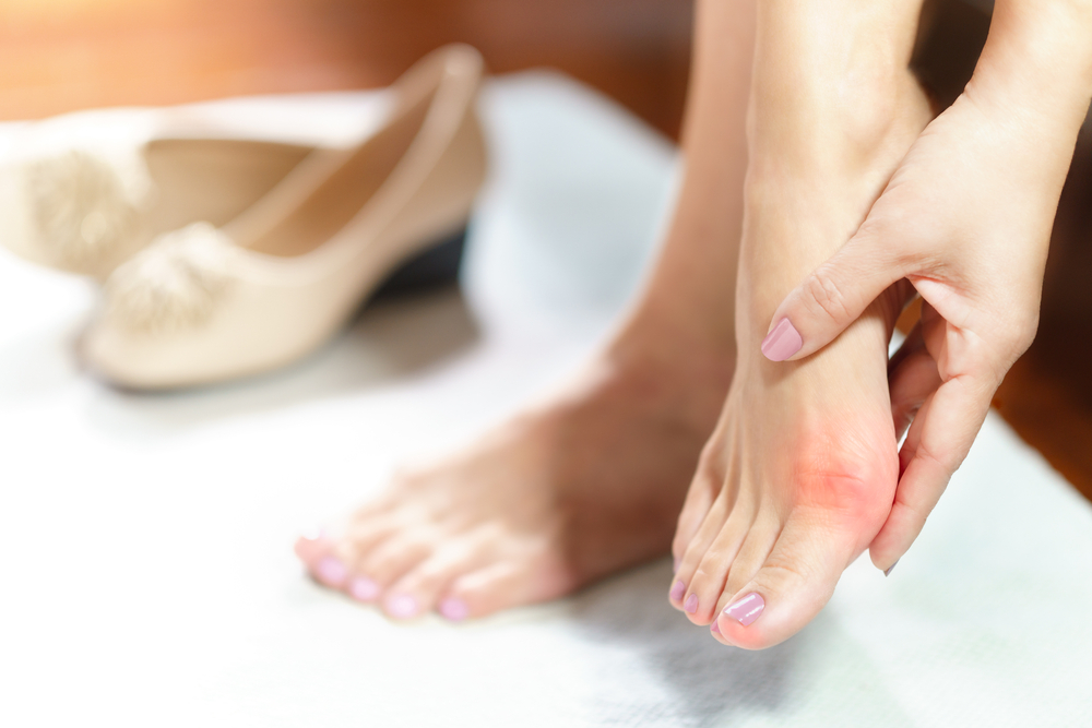 Bunions / Hammer Toes
